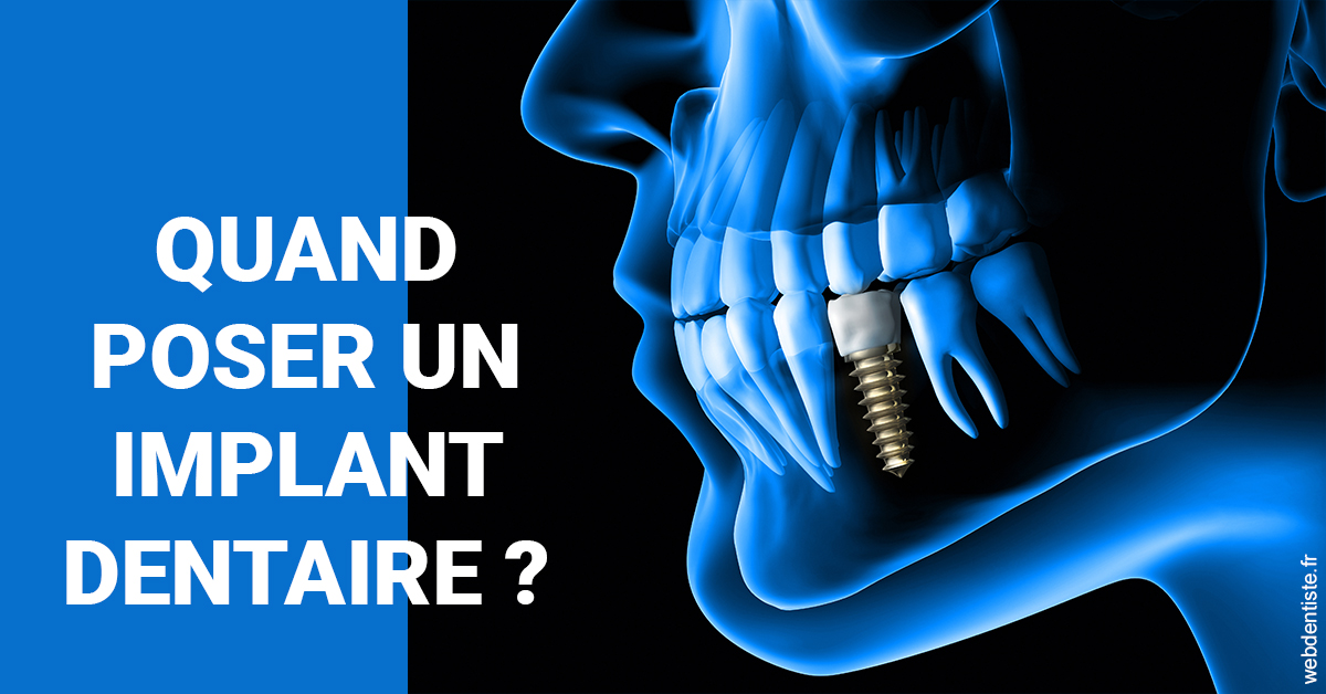 https://www.scm-smile.fr/Les implants 1